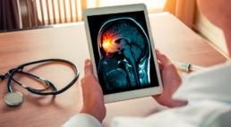 as mãos de um médico segurando um tablet, onde ele visualiza a imagem de um cérebro atingido por meningite