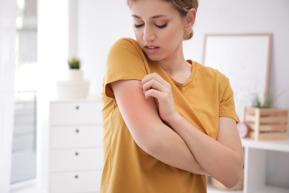 uma mulher coçando o braço que está todo vermelho