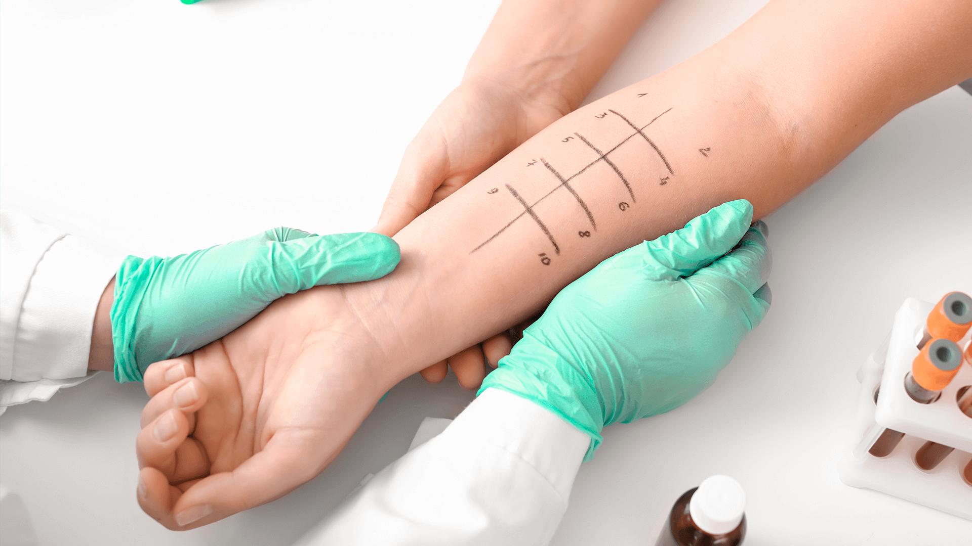 Um profissional de saúde está segurando o braço de um paciente e fazendo teste de alergia
