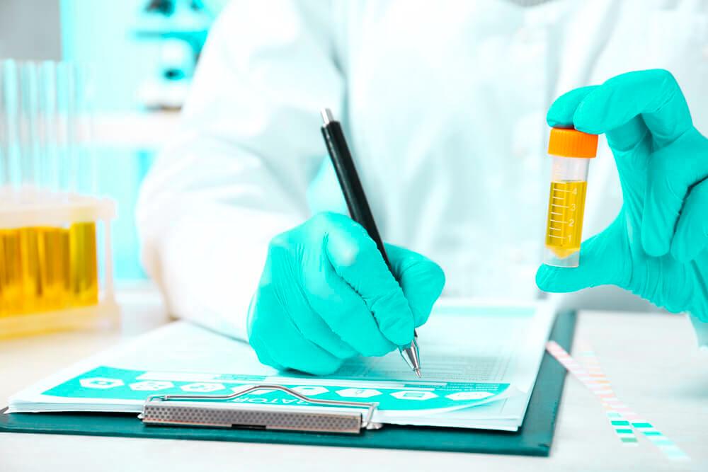 Um médico escrevendo um prontuário enquanto seguro um potinho de exame de urina