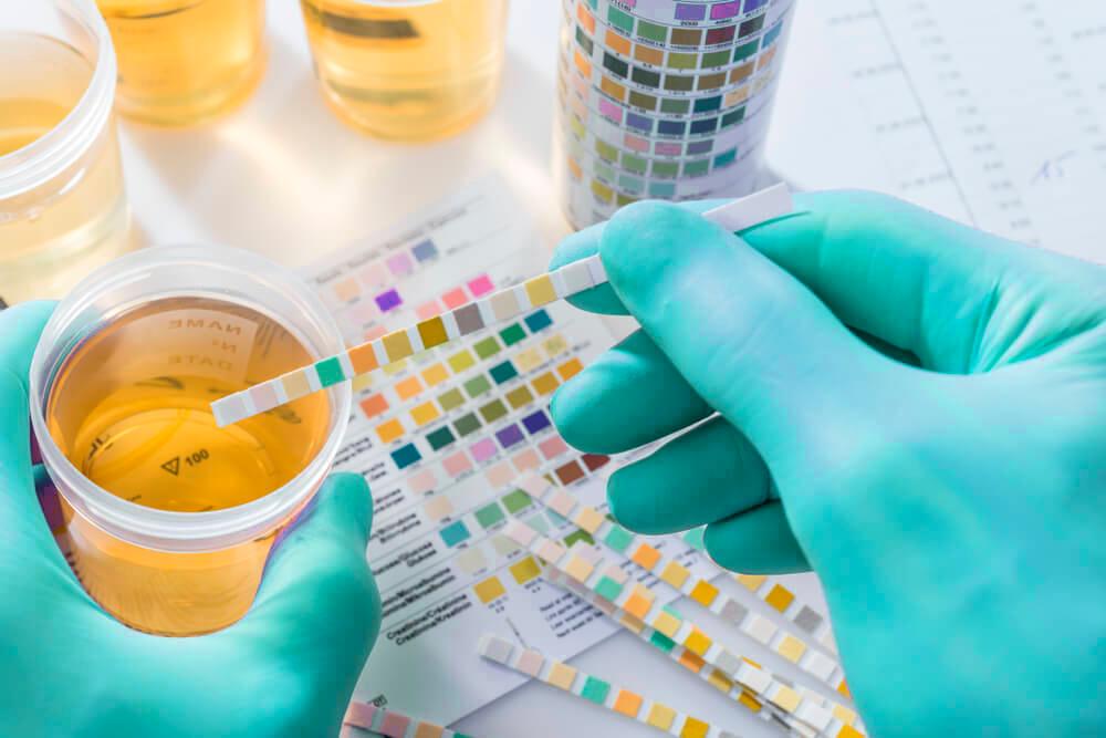Mãos com luvas verde segurando um potinho do exame de urina