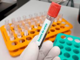 Mão com luva segurando uma ampola de sangue com amostra para o exame de ureia