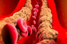 Corrente sanguínea mostrando as gorduras do corpo e o que é triglicerídeos
